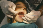 Dentist examining child with mouth wide open