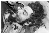 Bolivia, Santa Cruz, Vallegrande, Body of Che Guevara after insertion of formaldehyde, with forceps used to clamp the severed artery, late afternoon Monday 09 October 1967.