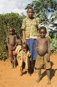 Burundi, Kirundo, A family beside the road living in poverty, child with obvious worms.